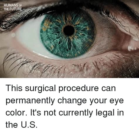 surgical eye color change 25 best memes about eye color eye color memes