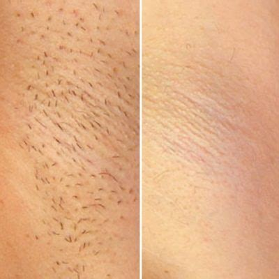 diode laser hair removal brisbane laser hair removal brisbane fiori institute of skin and brisbane