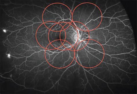 fundus u 2 ocular imaging in diabetic retinopathy mohamed qa egypt