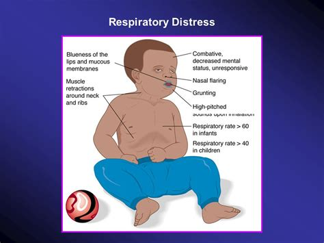 Respiratory Distress Pictures module 6 2 infants and children ppt