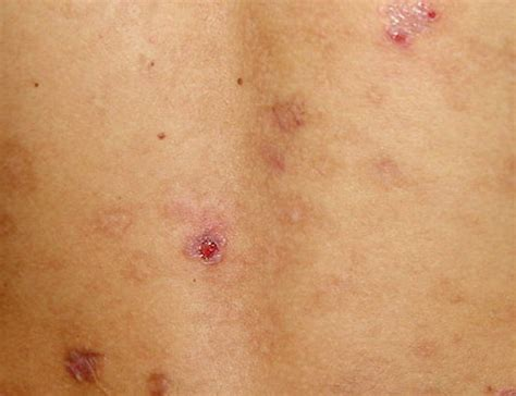 folliculitis treatment eosinophilic folliculitis pictures symptoms diagnosis treatment