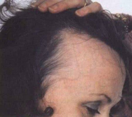 receding hair on womans male pattern baldness advanced appearance