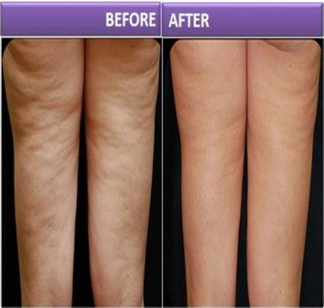 This Cellulite Works by Cellulite Diet Anti Cellulite Treatment
