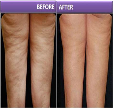 Cellulite Diet   Anti Cellulite Treatment