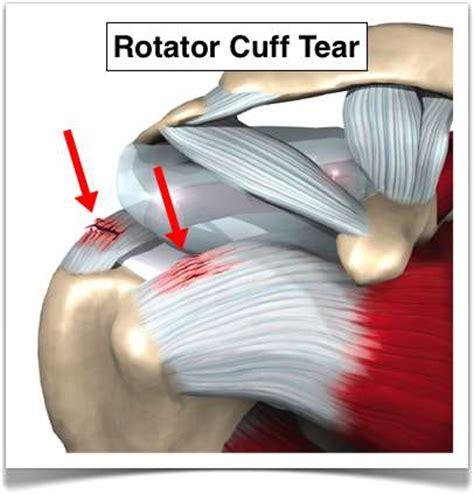 Lu Rotator Rotator Cuff Injuries And Tears