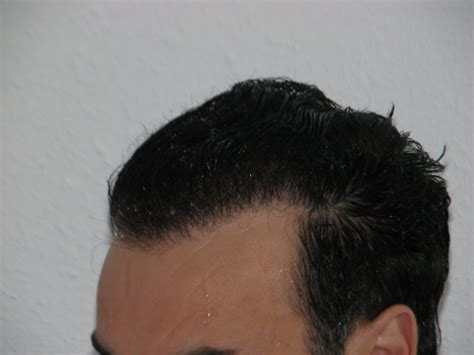 fue hair transplant 1920 grafts whtc www ufue whtc results whtc unshaven non shaven fue hair