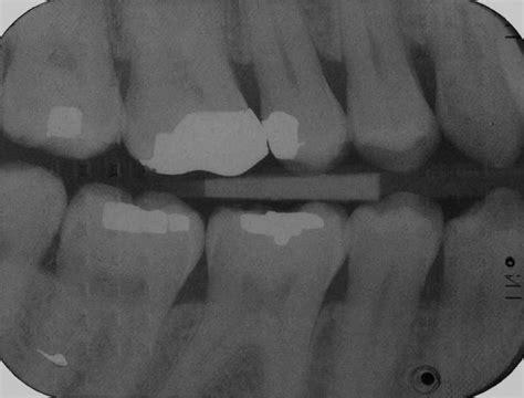 film x ray quiz dental radiography film faults quiz 1 verifiable cpd