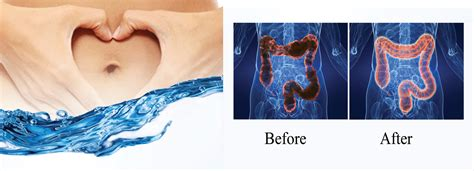 colon hydro therapy littleton denver exquisite salon
