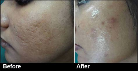 Treatment Laser Pores large pores tightening with carbon peel laser premier clinic
