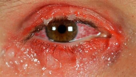 how to get rid of pink eye fast overnight naturally at