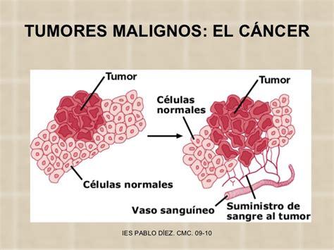 imagenes de enfermedades asombrosas las enfermedades tumorales y el c 225 ncer