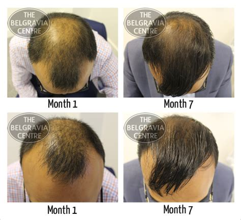 spironolactone and female pattern hair loss spironolactone 50 mg for hair loss sotalol 80 nebenwirkungen