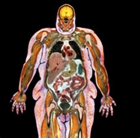 the human psyche and the pet obesity epidemic the epidemic that just won t quit nih intramural