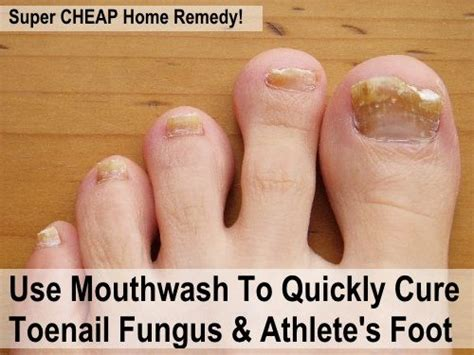 killing athletes foot in shoes use mouthwash to cure toenail fungus athlete s foot i