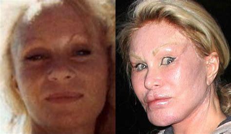 worst celeb plastic surgery worst celebrity plastic surgery fails 8 chinadaily cn