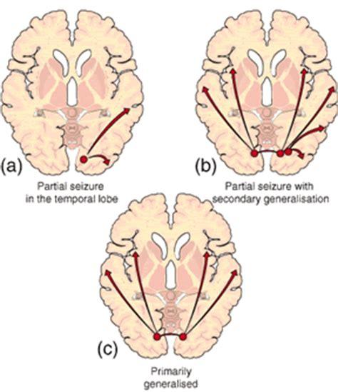 how to a seizure seizures intensive care hotline