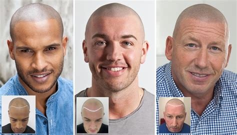 hair tattoo cost uk scalp micropigmentation hair tattoo for hair loss uk and