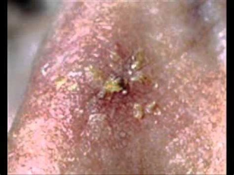 type of disease skin conditions types of skin diseases pictures photos