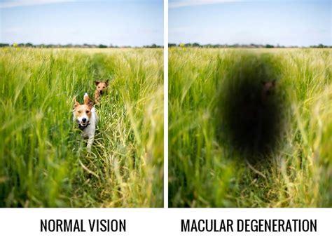 what you need to about what you need to about macular degeneration all
