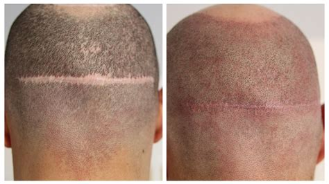 Cover Scars From Hair Transplant | scalp micropigmentation to cover scars by hairline ink