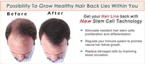 a cure for all disease except death baldness and hair loss hair loss treatment how to control hair fall via stem