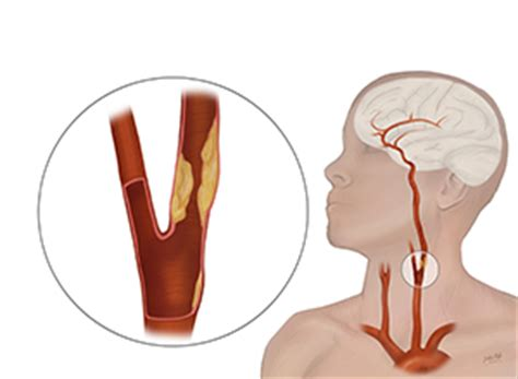 blocked arteries and open surgery procedure to open blocked carotid arteries tested the