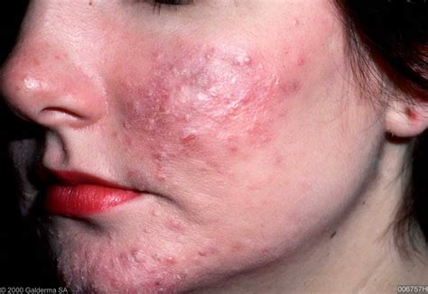 best treatment for acne rosacea image gallery rosacea acne