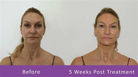 ageless ultramax gold side effects pdo threads lift miami md ageless solutions