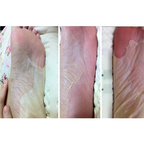 Online Buy Wholesale pedicure socks from China pedicure ... Royal Jelly Deutsch