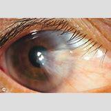 Conjunctival Lymphoma | 288 x 194 jpeg 25kB