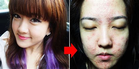 Wajah Wijaya Skin Care skin care klinik perawatan wajah dan kecantikan caroldoey