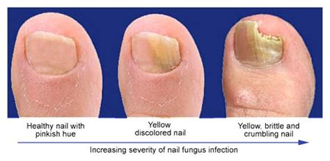 how did i get toenail fungus inkfree md can help you