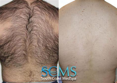 back hair laser hair removal los angeles laser hair removal orange