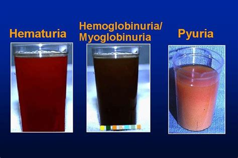 protein and blood in urine 44 best images about blood in urine hematuria on