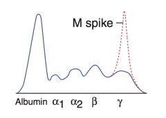 m protein spike fa hem onc pathology wbc flashcards cram