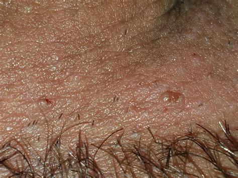 dark marks from ingrown hair picture of ingrown hair on penis