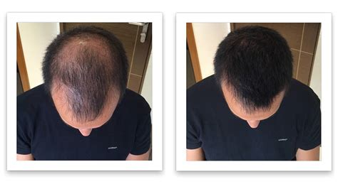 hair growth before and after hair loss remedies caboki before and after pictures