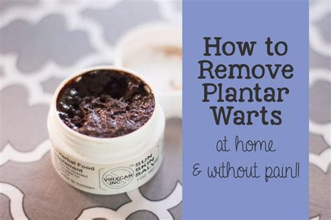 how to remove a plantar wart home remedy home medicine