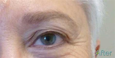 tattoo eyebrows grey iron oxide vs non iron oxide pigments