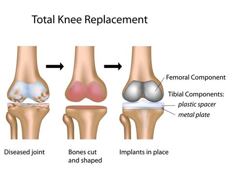 Can Person With Knee Replacement Get Ionic Foot Detox by Knee Replacements Kansas City Bone Joint Clinic