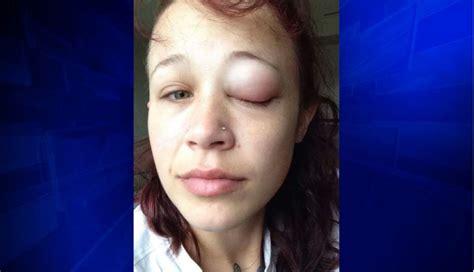 eyeball tattoo abc woman may lose her eye after getting botched eyeball tattoo