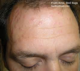 do bed bugs bite your scalp what do bed bug bites look like