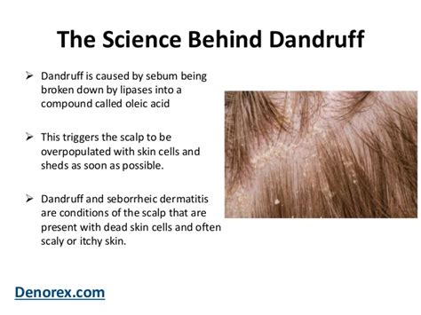 Do Hair Dryers Cause Dandruff what is dandruff