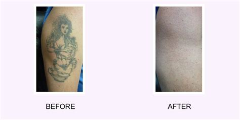 i want my tattoo removed i want my removed i regret my