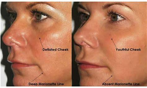 Promo Hijau Aloe Vera Vaseline Lip Therapy Aloe Vera Pocket 20gr vous connaissiez la technique du facelift