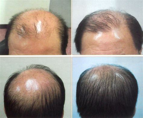 laser light therapy for low level laser light therapy for hair growth shelly