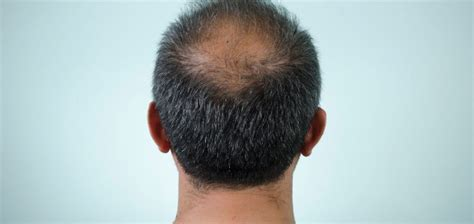 Hair Transplant Types by Hair Transplant Losing Your Hair Cost Recovery Etc