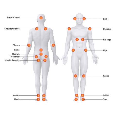 pressure ulcer locations diagram ultimate healthcare pressure ulcers