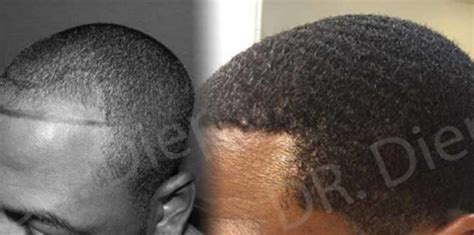 african american hair transplant what to know about african american hair transplants