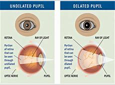 What Do Dilated Pupils Mean? Dilatation Meaning